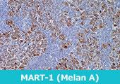 MART-1 (Melan A) (A103)